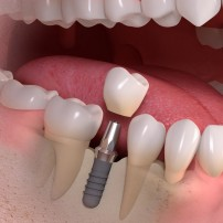 Implantolog Bielawa