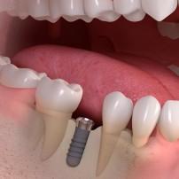 Implanty Straumann Bielawa